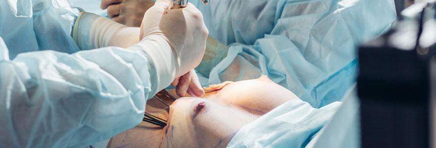 Opération d'augmentation mammaire à Paris