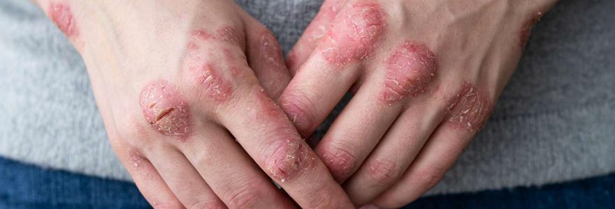 psoriasis en goutte